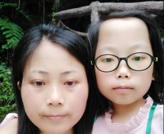慈善募捐|母女同患罕见病,母亲的心只祈祷女儿平安|公益宝